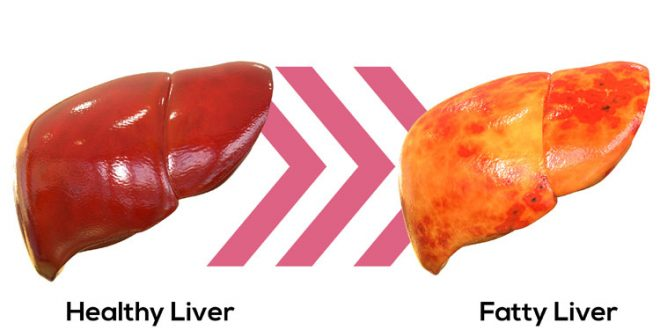 Strength Training May Reduce Fatty Liver Disease